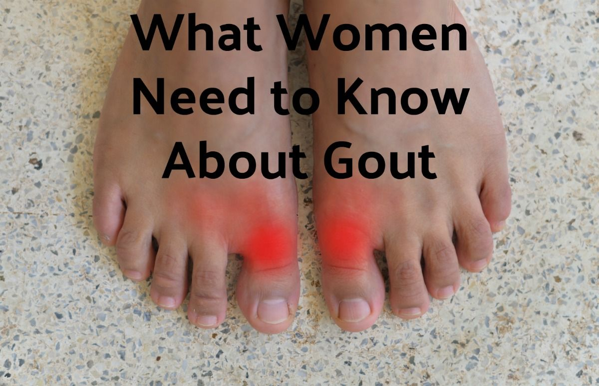 What Women Need to Know About Gout Rocky Mountain Foot