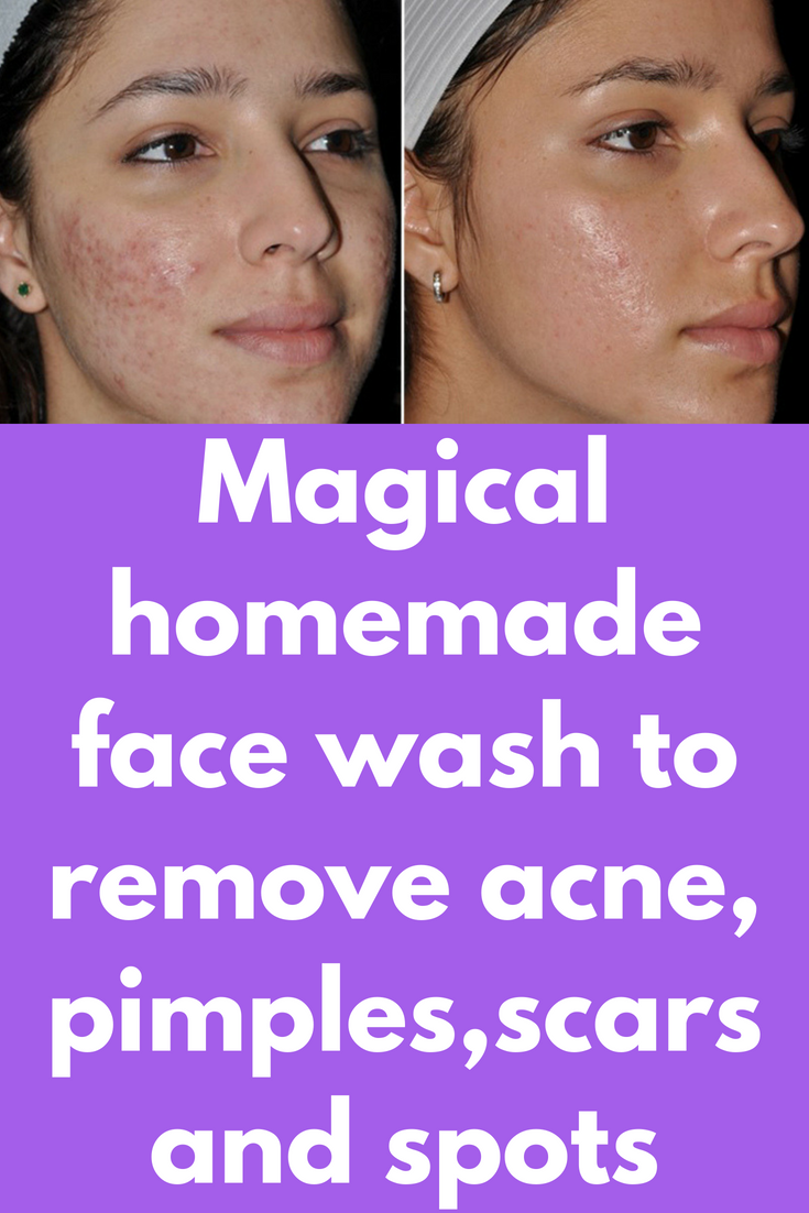 Magical homemade face wash to remove acne, pimples,scars and spots Ingredients required : Organic green tea powder Neem powder Tea Tree essential oil Honey ...