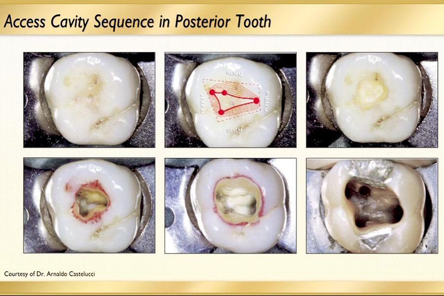 endodontic-posterior-access