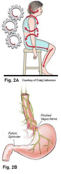 Poor Posture, hiatal hernia, diaphragm, GERD, stomach, vagus nerve ...