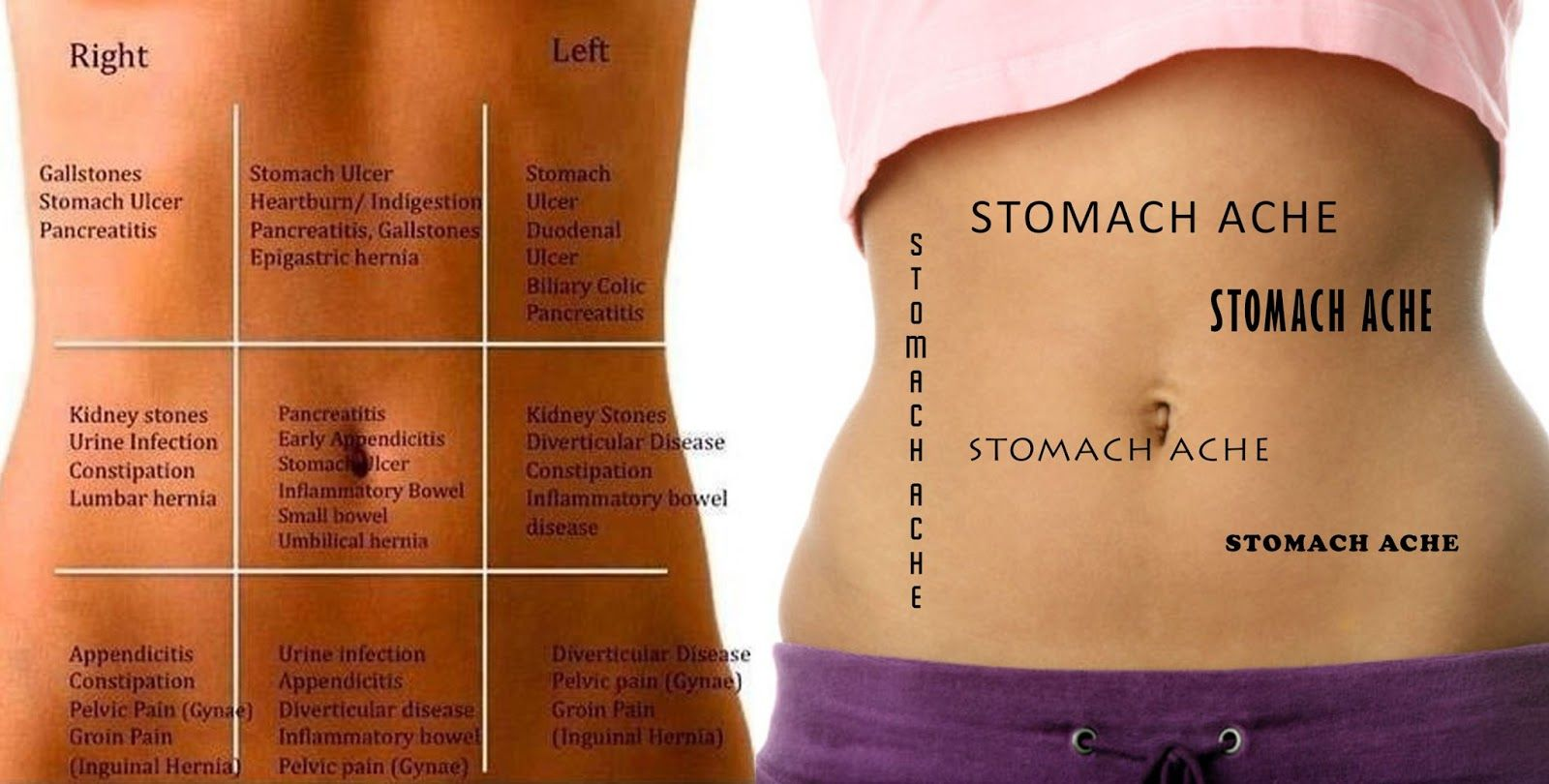 Image Result For Female Abdominal Anatomy Health Fitness Things
