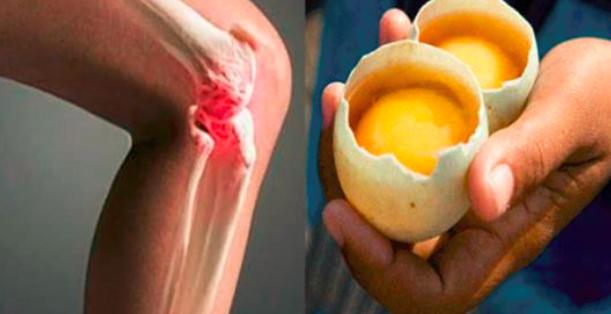 Картинки по запросу usar 2 huevos para desaparecer el dolor iculaciones