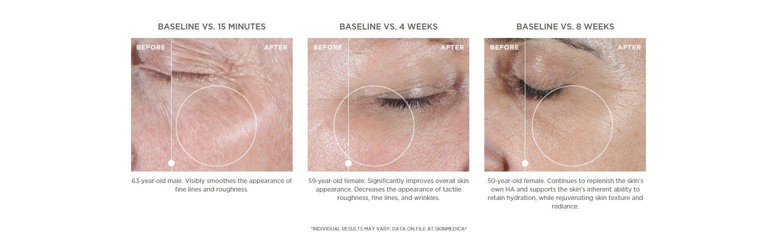 Laser clinic skinmedica ha5 skin medica