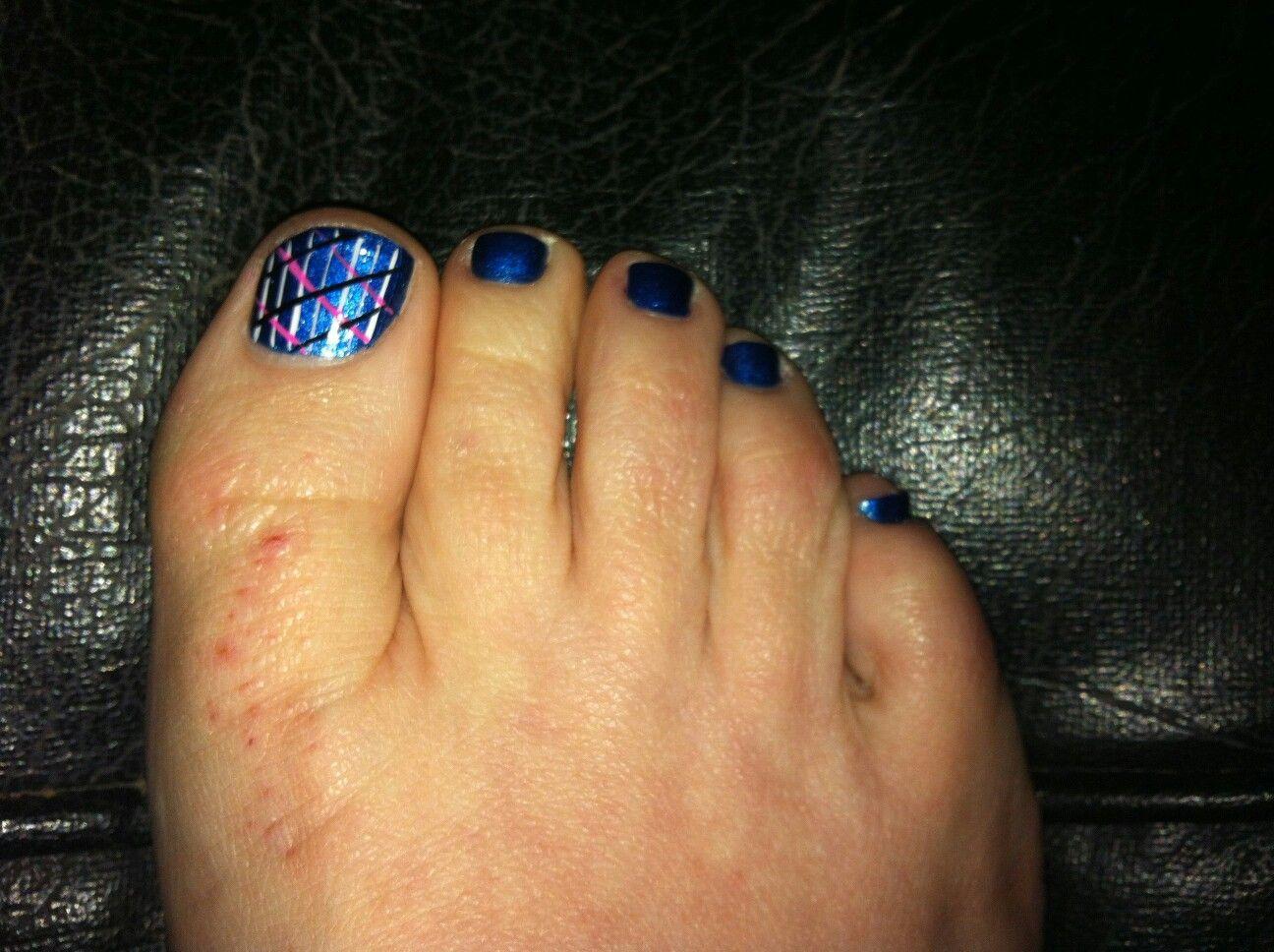 My pretty blue stripped pedi