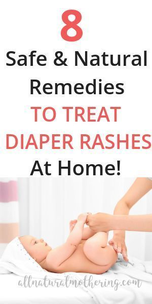 8 Natural Remedies To Treat Diaper Rashes At Home Isabella