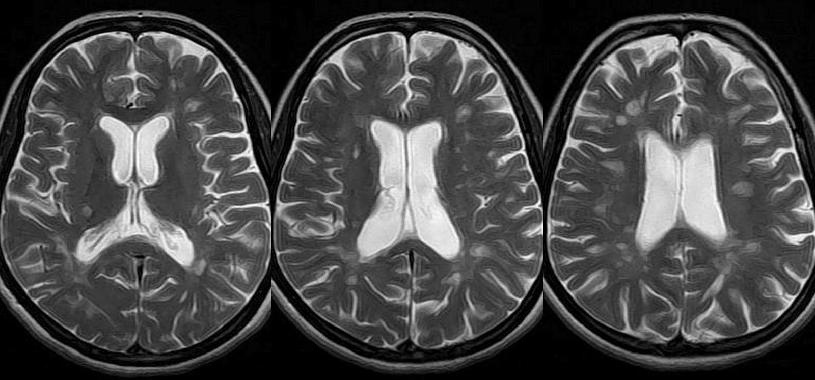 Multiple Sclerosis Mri Brain Mri Scans Pinterest