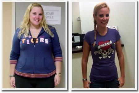 Gastric Sleeve Before and After Pictures and What You Can ...
