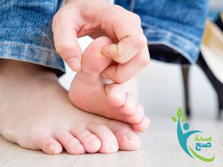 دليل شامل عن علاج النقرس بالاعشاب Gout Treatment Herbs