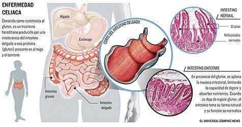 sintomas de intolerancia al gluten en adultos