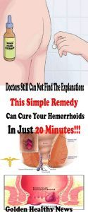 DOCTORS STILL CAN NOT FIND THE EXPLANATION: THIS SIMPLE REMEDY CAN CURE YOUR HEMORRHOIDS IN JUST 20...