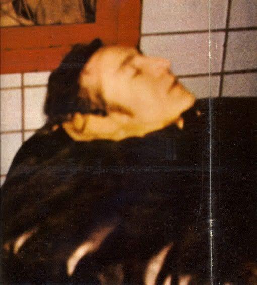 John Lennon Autopsy