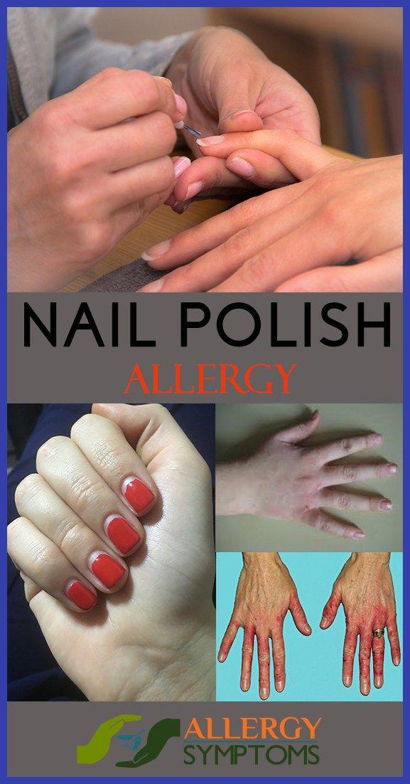 Nail Polish Allergy - Fingernail and Toenail Infection | Pinterest ...