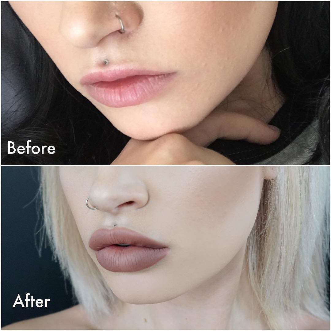 Before and after 1 syringe of Restylane on @atleeeey Have