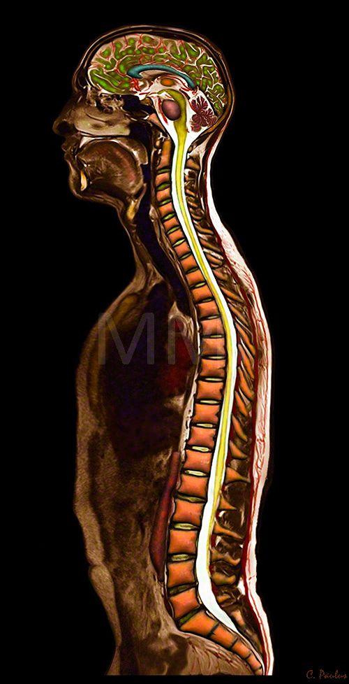 3 D Color MRI Whole Body Anatomy | Office | Pinterest | Body anatomy