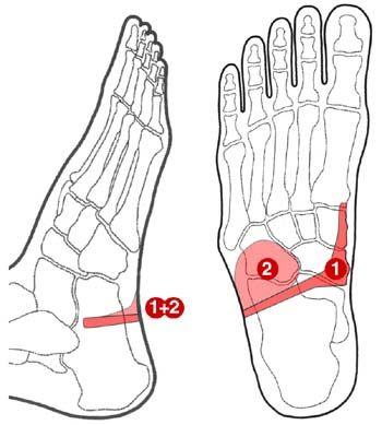 tendinitis del psoas iliaco pdf