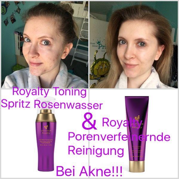 Royalty Toning Spritz Rosenwasser und Royalty Porenverfeinernde Reinigung gegen Akne und Hautirritationen. Meine Haut fühlt sich besser an und es kommen weniger neue Hautunreinheiten hinzu. Mein Hautbild hat sich stark verbessert.  Ich kann euch nicht sagen, ob es euch hilft, aber mir hat es sehr geholfen 😍   www.youniqueproducts.com/SabrinaRieb