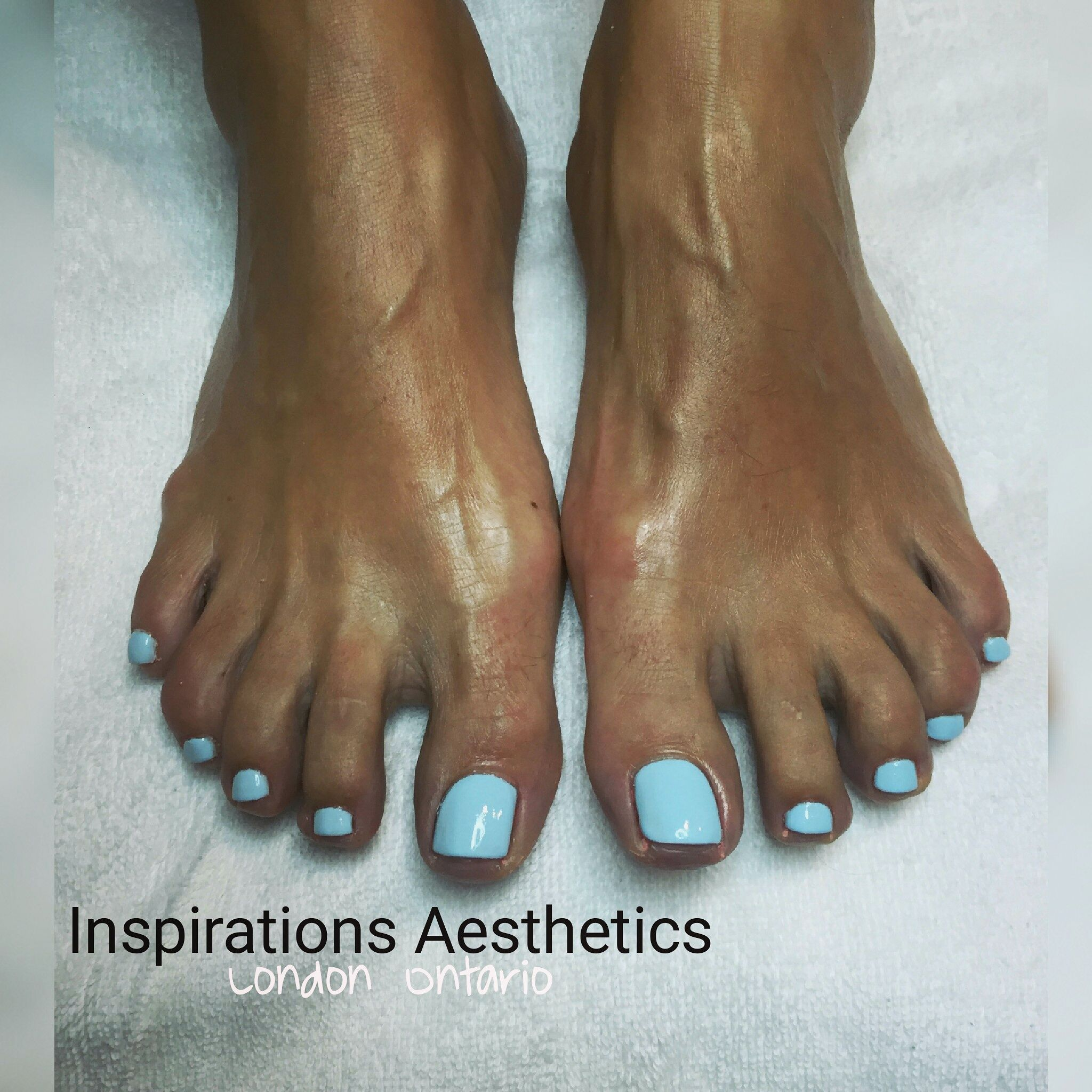 Baby Blue Toes looking fabulous on these beautiful tanned feet Spa Pedicure $45 00 with Inspirations