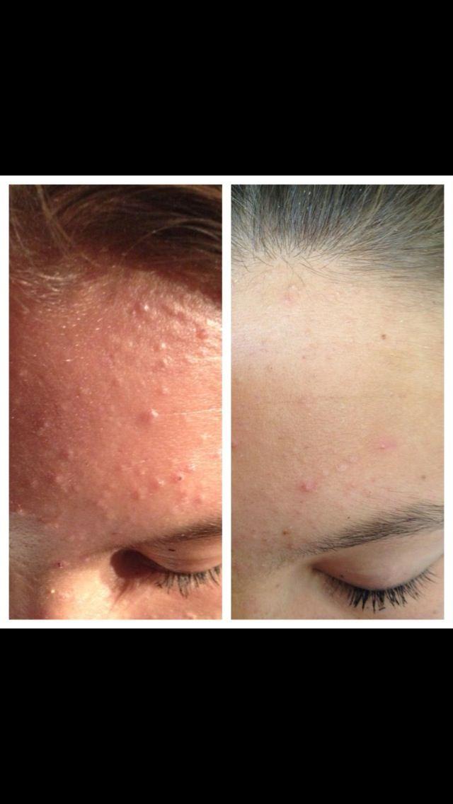 exuviance acne resultat