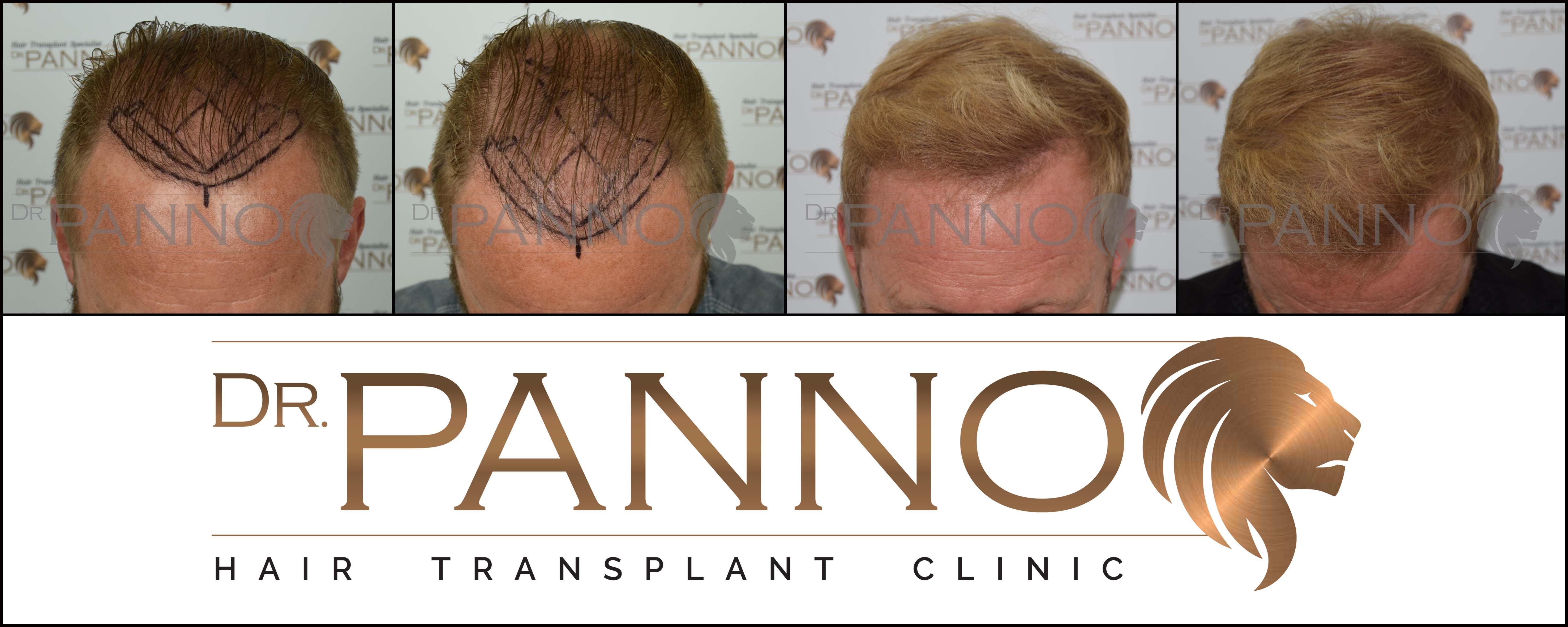 b7fb82cb0cdbe Nuevo resultado de  trasplante  capilar realizado en pelo rubio mediante  técnica  FUE en