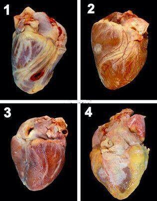 Corazón | Anatomia | Pinterest | Medicina, Enfermería y Anatomía