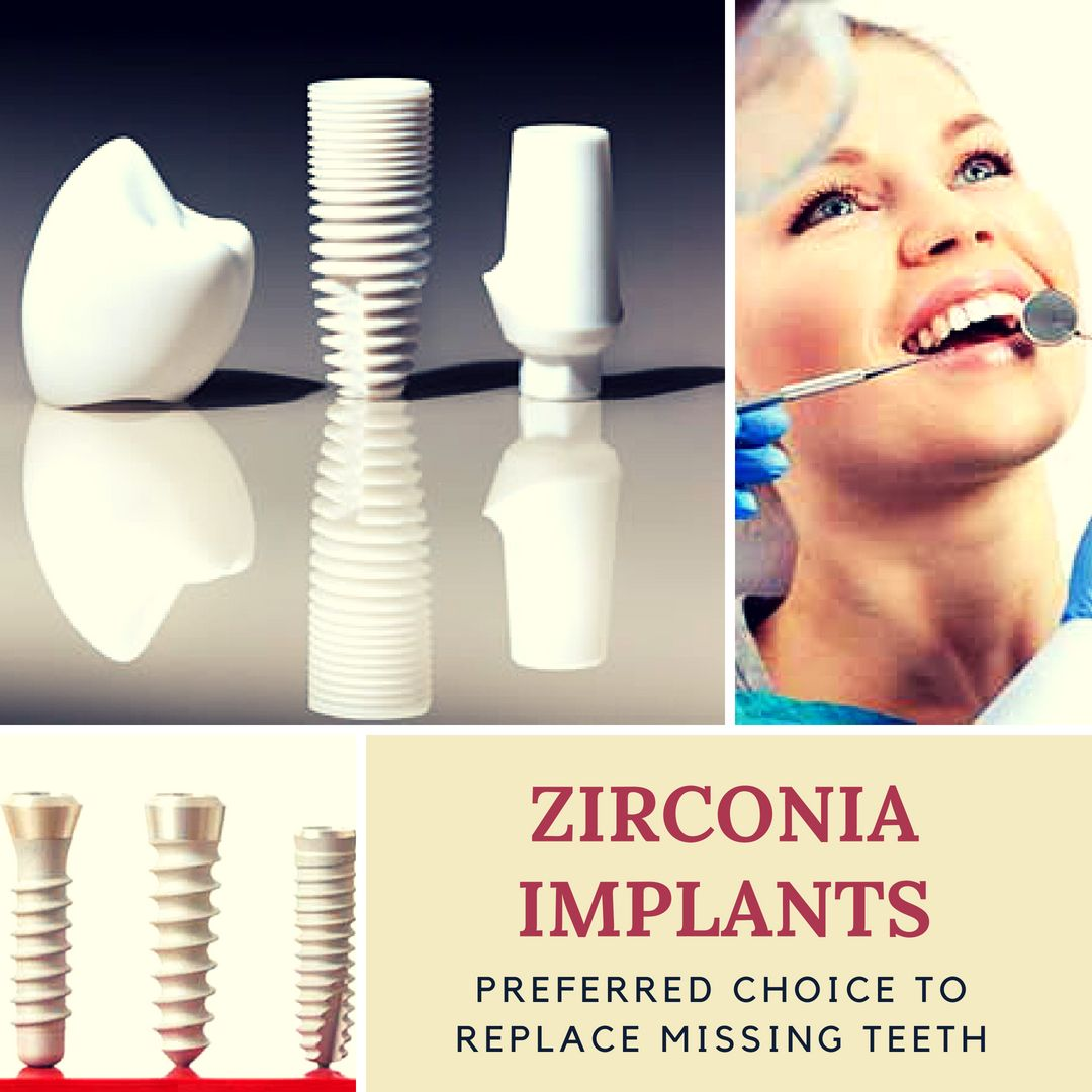 Zirconia Implants Have Become Increasingly Popular For Safety Wellness And Aesthetic Reasons Plus They Do Not Cause Irr Dental Facts Dental Implants Implants