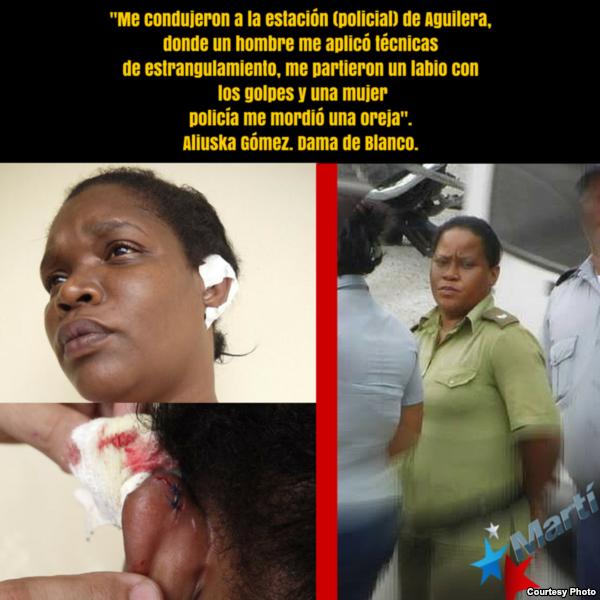 Aliuska Gómez también recibió una mordida, e igualmente identificó a su agresora.