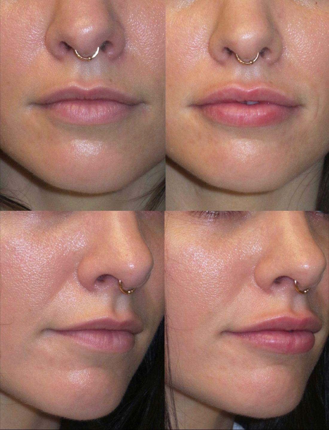 Juvéderm lip fillers, premier plastic surgery Lip