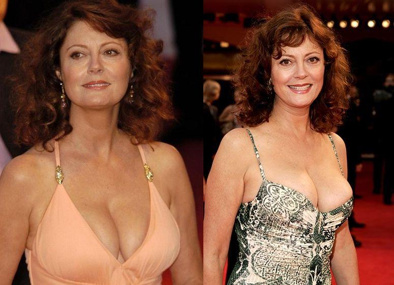 Susan sarandon breast pictures — img 10