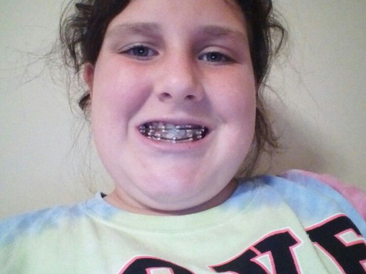 Fake braces with bobby pin and earing backings | Braces