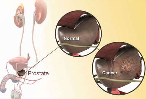 Photo Of Normal And Cancerous Prostate Diagram Greathealth