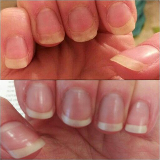 My Nails Used To Be So Gross Before I Started Taking Biotin On Top After About 6 Months Bottom It Made A Huge Difference