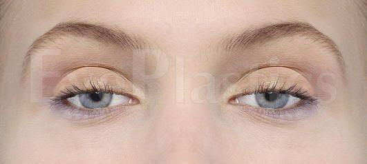 Eyelid surgery blepharoplasty, eyelift eyelid lift surgery cosmetic eye surgery