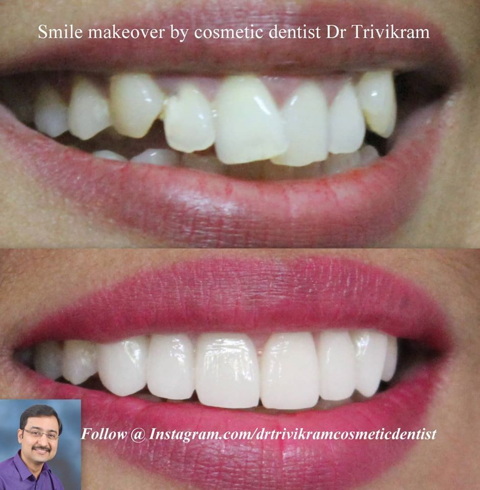 Follow drtrivikramcosmeticdentist smilemakeover by