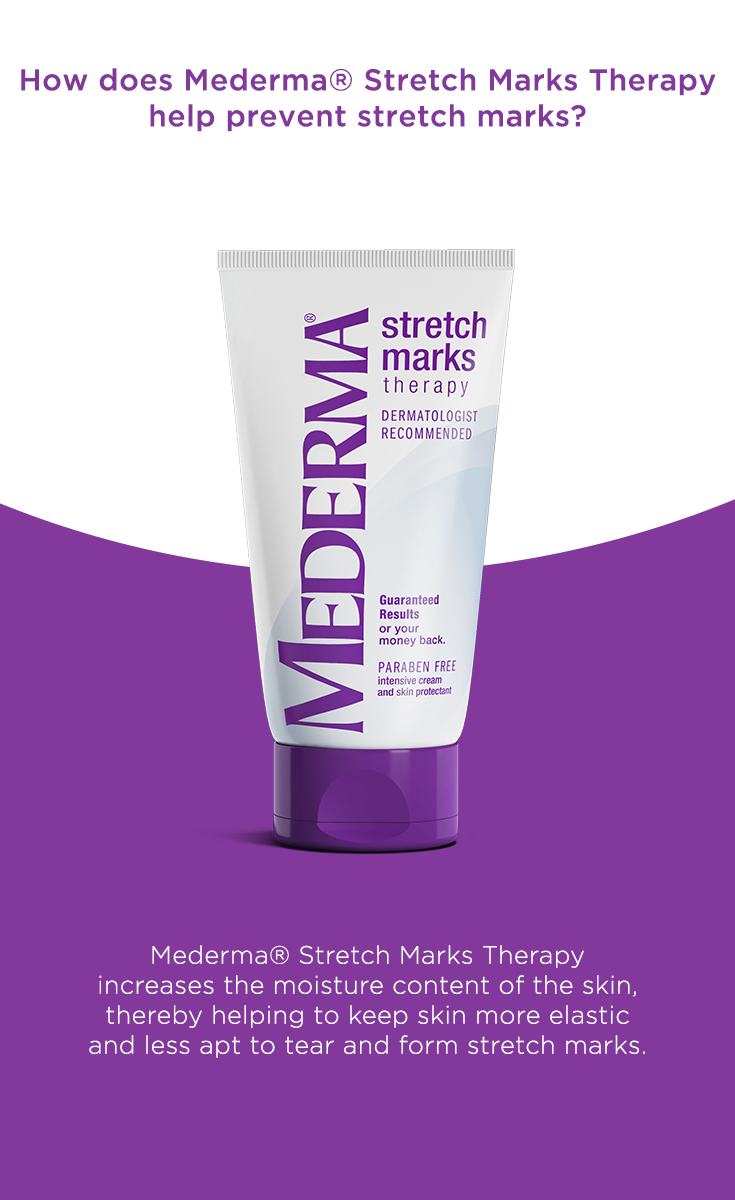 How does Mederma Stretch Marks Therapy help prevent stretch marks