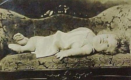 Медуза ван Аллен родилась в 1908 году и страдала от уникального генетического заболевания костей, в результате которого росла только её голова. Стоять или сидеть она не могла — и всегда лежала. Во фрикшоу она обычно и играла роли младенцев — её, 70-сантиметровую, выносили на сцену на руках, баюкали, качали, а потом она внезапно начинала говорить, рассуждать о философии и литературе, повергая зрителей в восторг. Медуза была звездой цирка Ripley's human oddities.