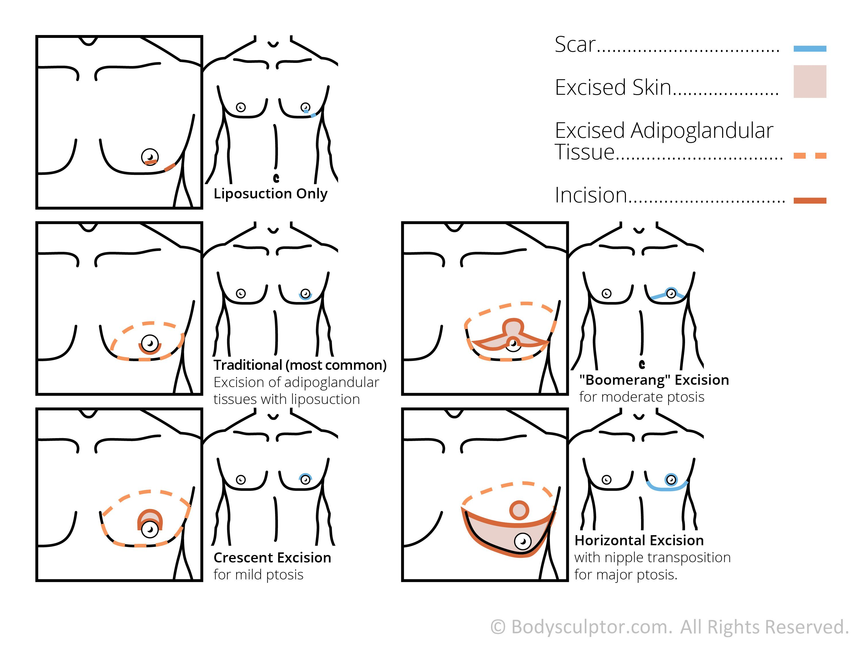 Diagram Of Male Breast Reduction Surgery