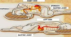 How Sleeping on Your Left Side Affects Your Health The sleeping position can have a major impact on your overall health. The posture of sleeping could potentially cause:  Neck and back pain  Sleep apnea