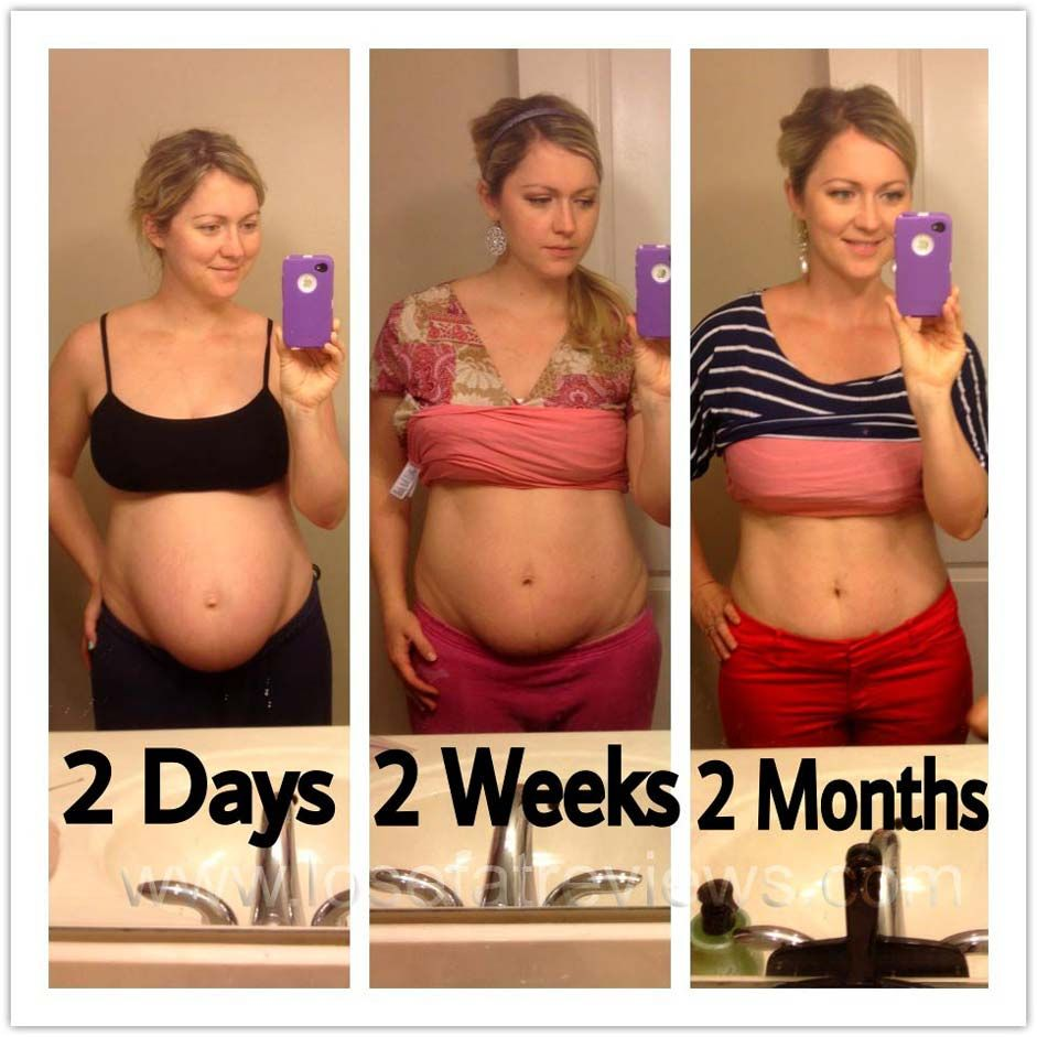 weight loss in early pregnancy uk