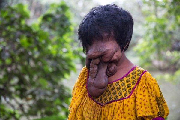 """Khadija Khatoon vivió toda su vida sin cara. Desde que nació en India hace 21 años, nunca llegó a hacerse una cirugía porque según los médicos """"no había nada que hacer"""" y una operación podría haber puesto en riesgo su vida."""