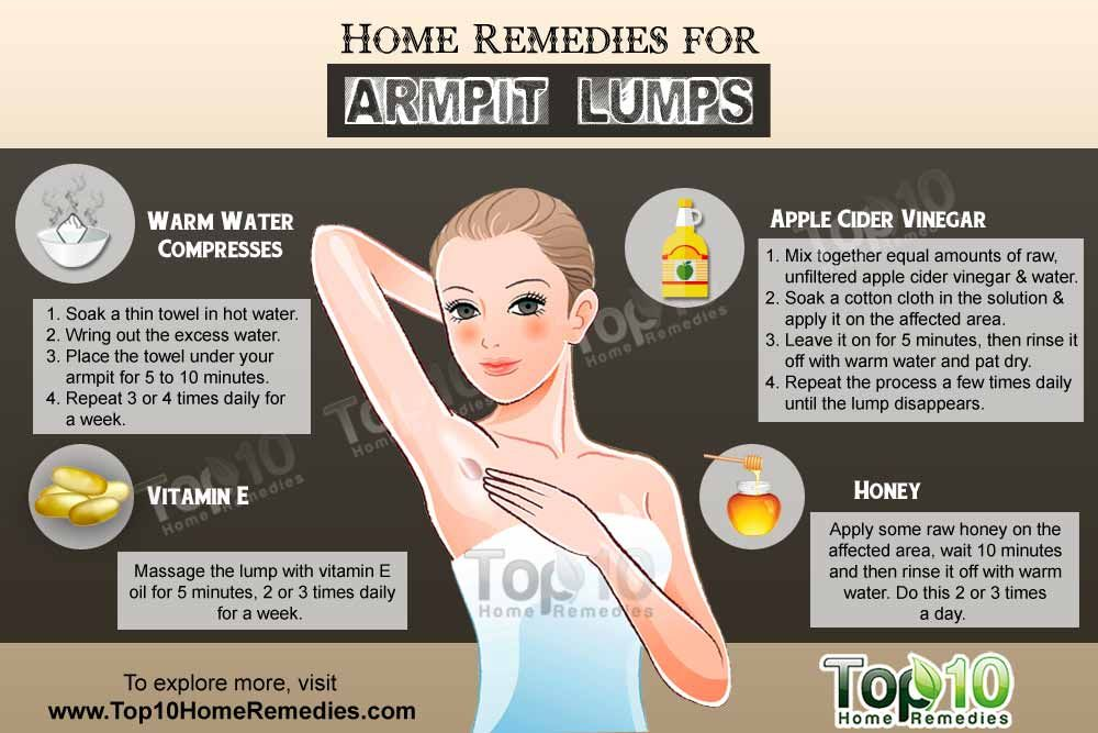 Home Remedies for Armpit Lumps | Lymph nodes, Arms and ...