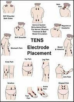 Tens machine placement chart google search tens unit placement