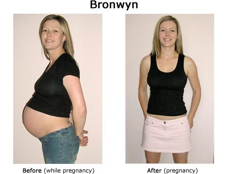 C section weight loss photo 9