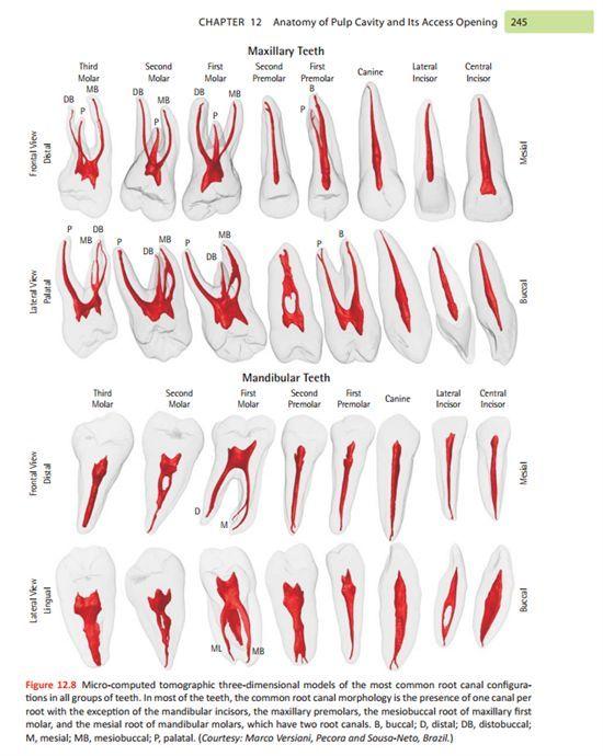 Dentaltown endo access pic database also wael pinterest dental rh