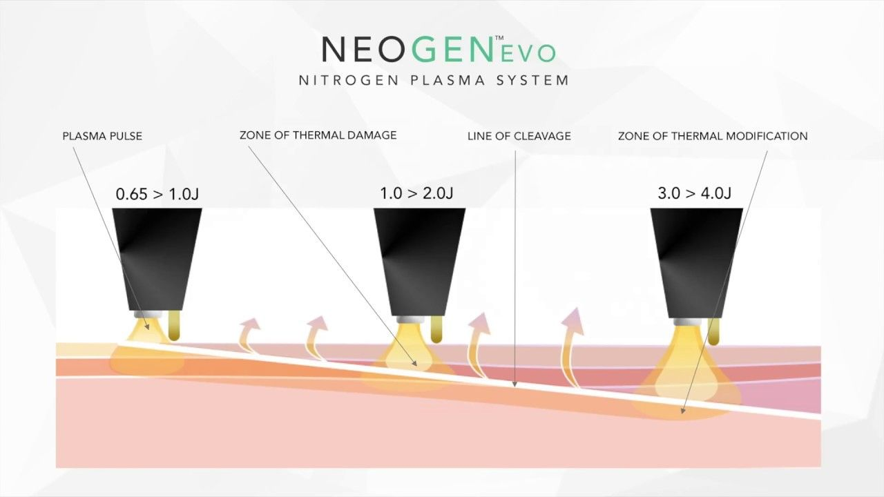 Introducing Neogen Evo Plasma Technology Technology Plasma Product Launch