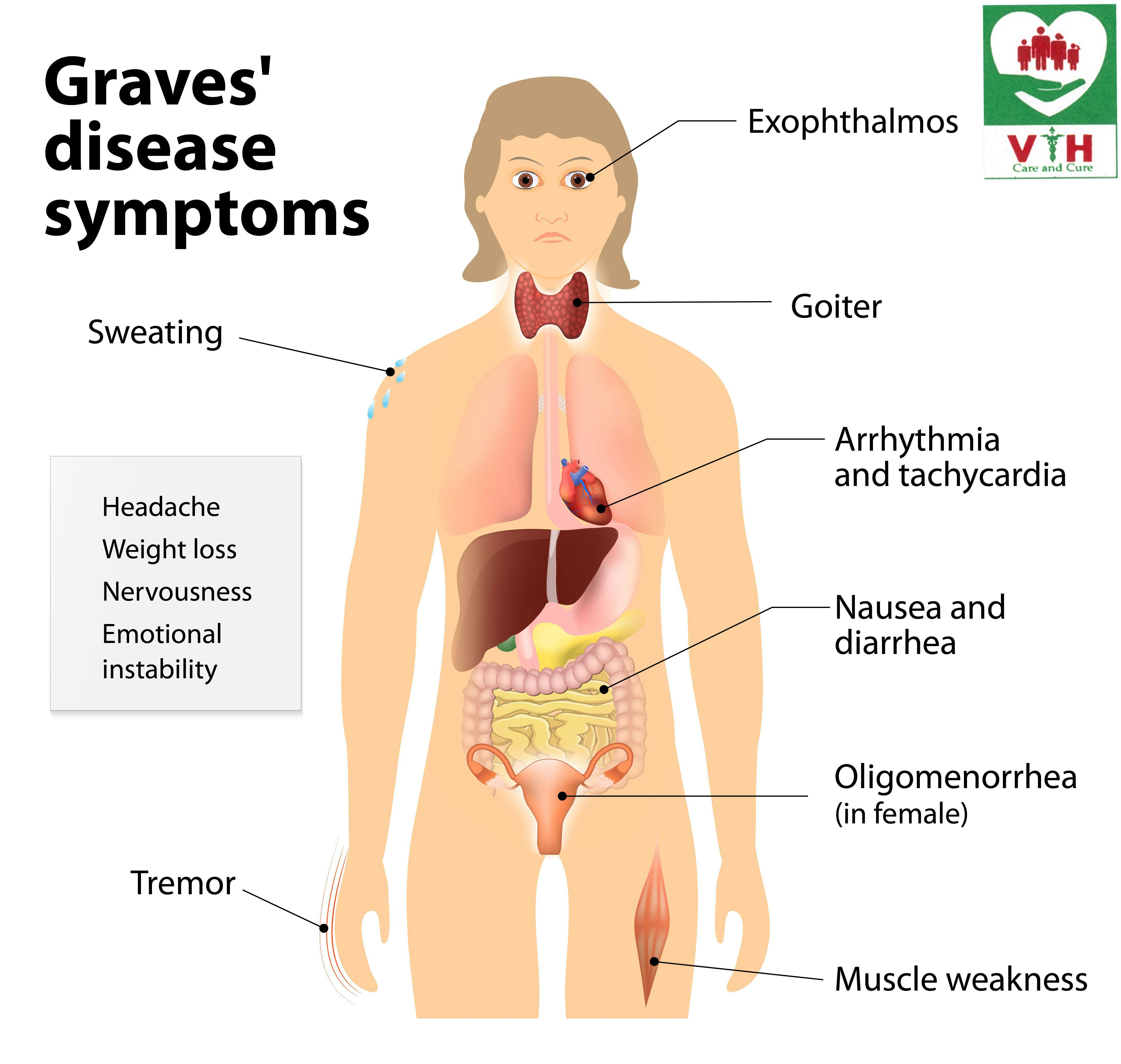 Graves This Condition Causes The Thyroid Gland In The Neck To