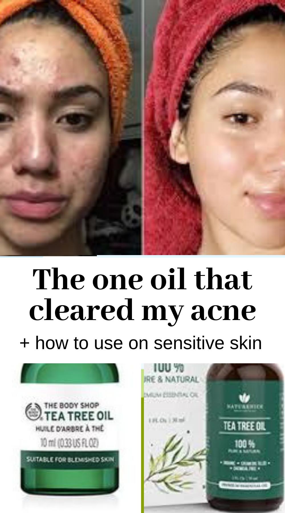 Use tea tree oil on acne, to get rid of pimples + Diy tea tree recipe: clear face tips -   13 skin care Acne tea tree ideas