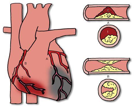 angina pectoris bij vrouwen