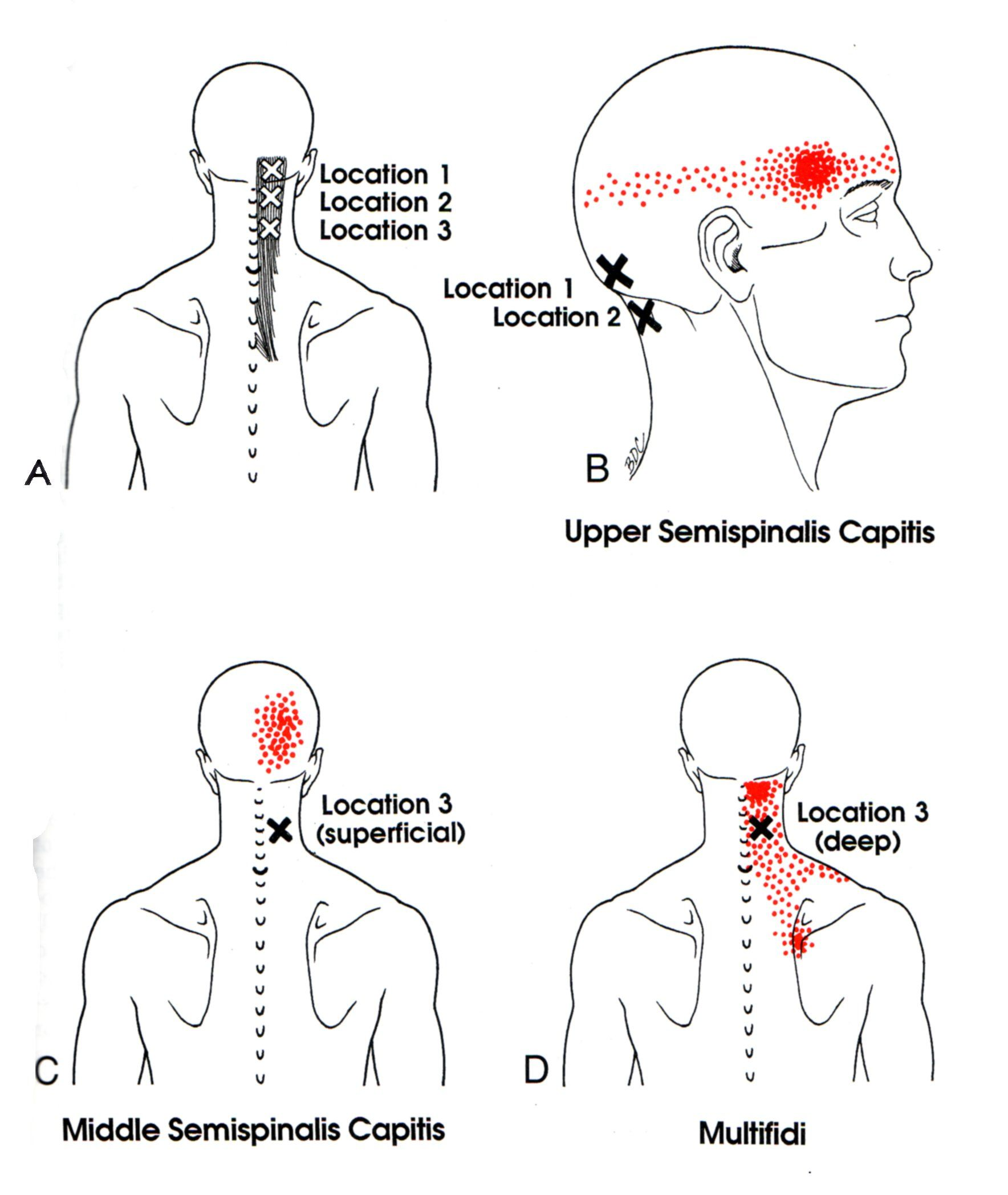 massage technique diagram electrolux double oven wiring semispinalis capitis the trigger point and referred pain