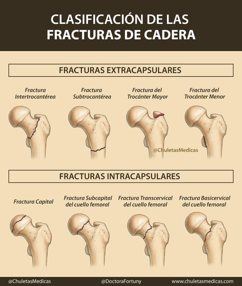 Clasificación de las Fracturas de Cadera chuleta | ciencias forenses ...