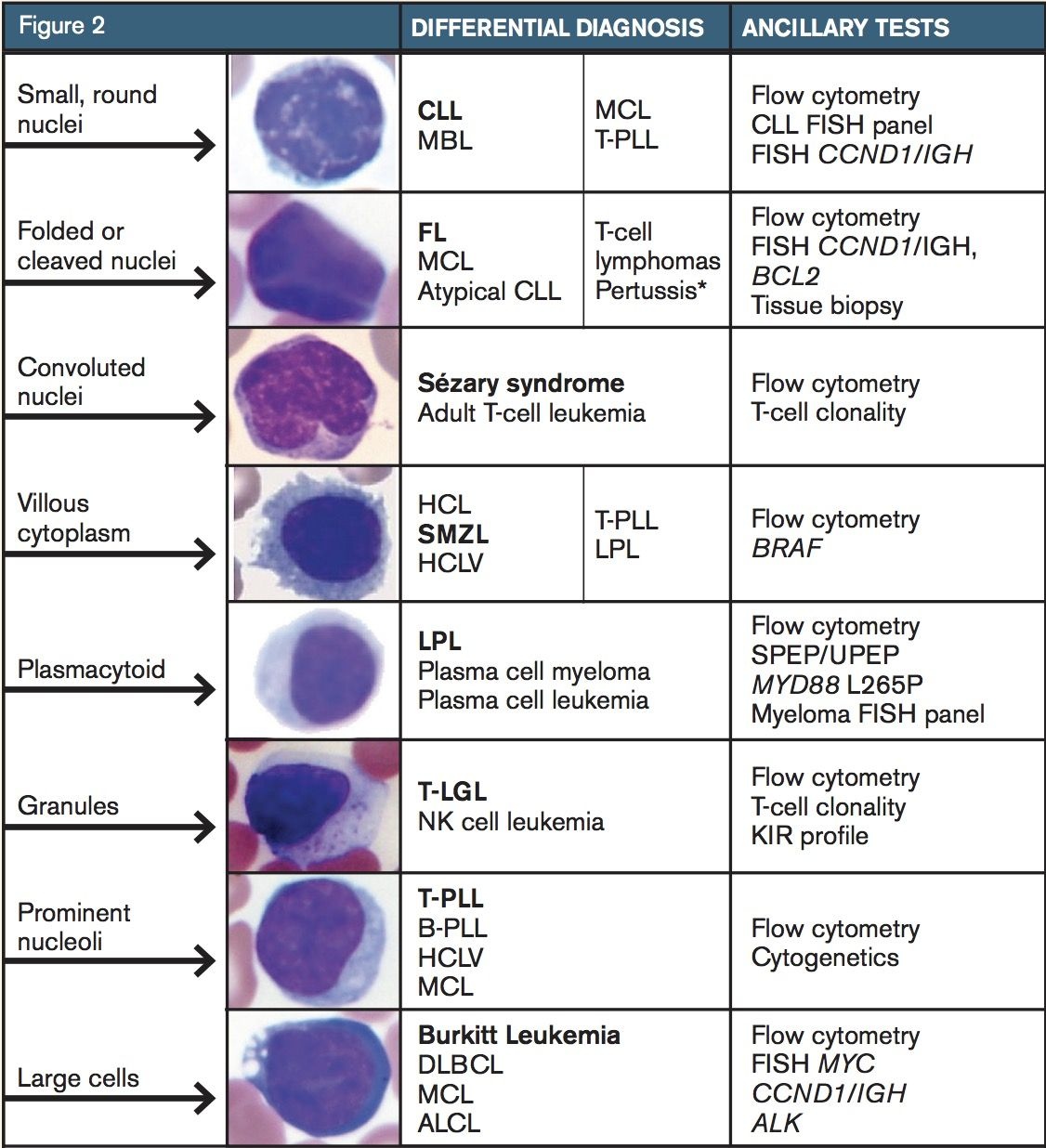 The Differential Diagnosis For A Neoplastic Lymphocytosis